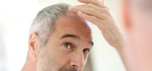 beyaz sac large 300x141 Senior man and hair loss issue