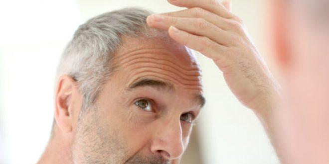 Saçlarımız niçin beyazlaşıyor?